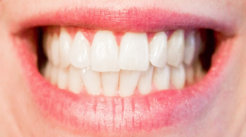 Open Smile - Why Do Your Teeth Hurt