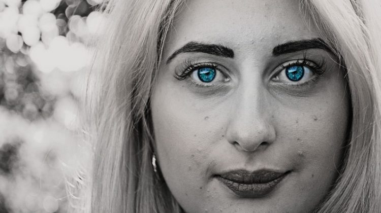 Woman with Stunning Blue Eyes and Acne