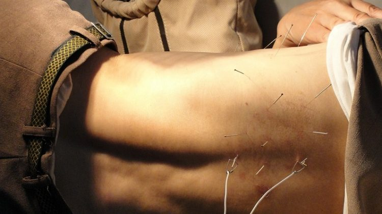 Man getting Acupuncture Treatment on His Back - Advanced Health: The Top 5 Benefits of Acupuncture