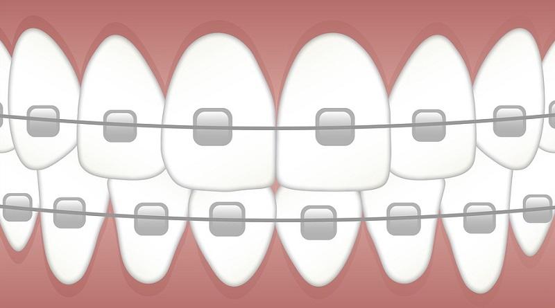 Braces Clip Art Types of Braces