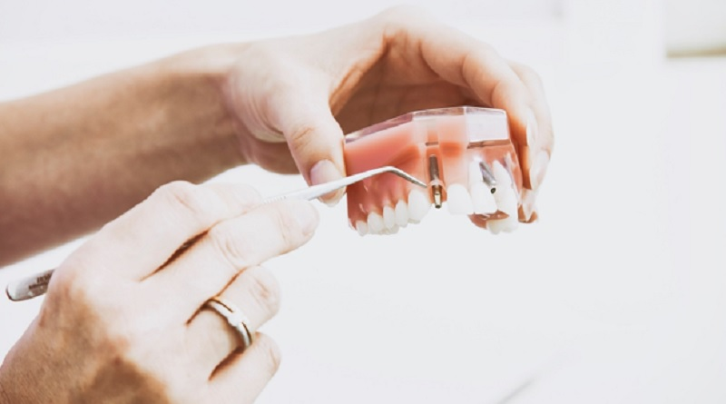 Veneers - False nails for teeth?