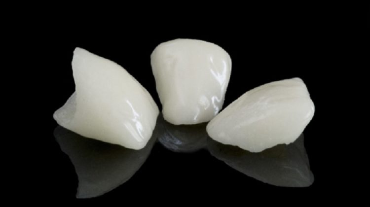 Teeth - Oral Implants