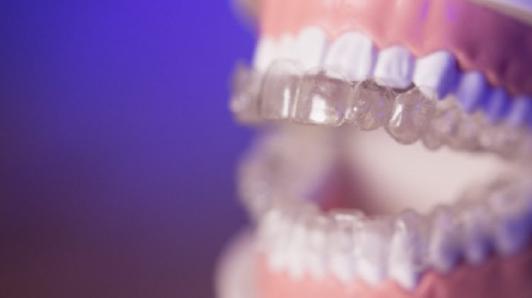 Invisalign - Benefits of Invisable braces