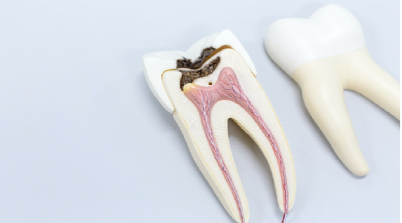 Sectioned Tooth - Tooth Replacements
