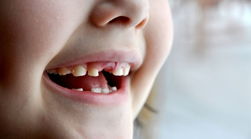 When Are Children Supposed To Lose Their Baby Teeth Child with lost baby tooth